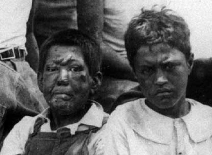 Tarih Öncesi Hastalık – Cüzzama Şöyle Bir GözAtış
